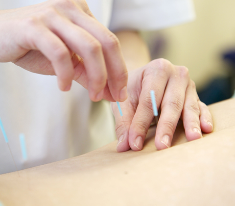 鍼治療の技術